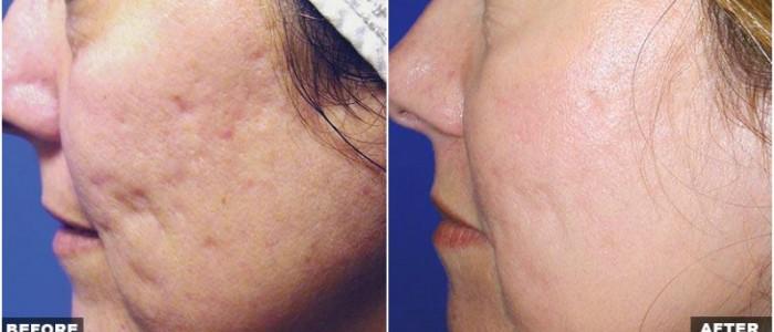 Fraxel Laser Treatments