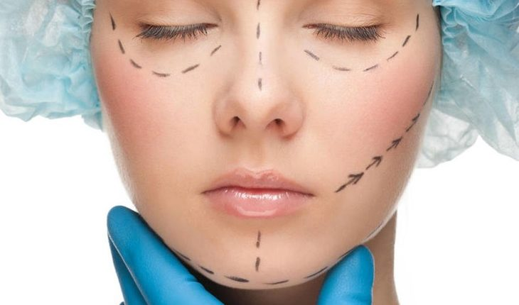 Growing Popularity of Facelift Among Youngsters