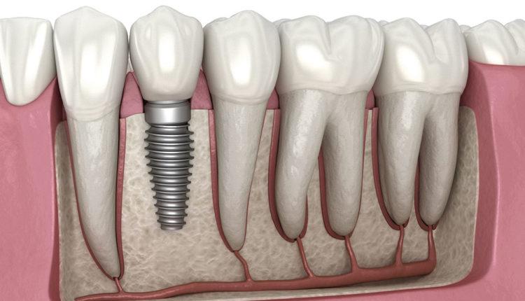 Dental Implant 1